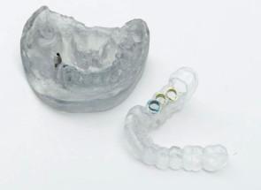 Modèles pour moulage dentaire imprimés en 3D. (Source : Stratasys-Objet)