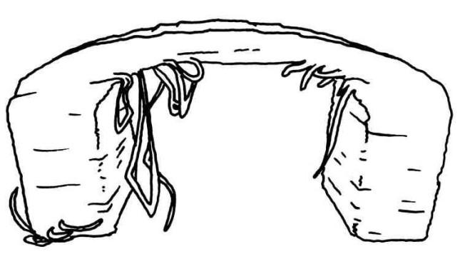 Figure 8-1. Les porte-à-faux peuvent entraîner des affaissements de matière et des couches filamenteuses